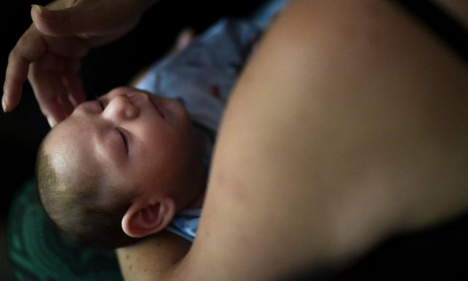 A mother in Puerto Rico and her 2-month-old son who was diagnosed with microcephaly linked to the Zika virus. Photo: Carlos Giusti, Associated Press