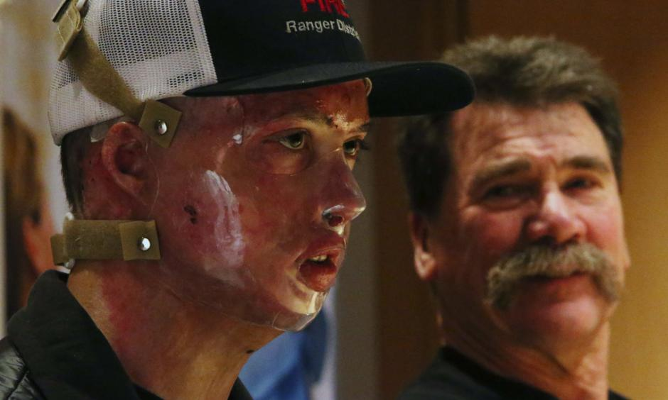 Daniel Lyon, Jr., the firefighter who survived the deadly Twisp blaze, speaks during a news conference at Harborview Medical Center on Wednesday in Seattle. At right is his father, Daniel Sr. (Ken Lambert / The Seattle Times)